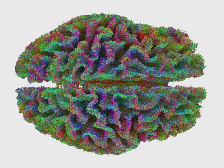 Felix Rasehorn | Hybrid Interactions in Neurosurgery